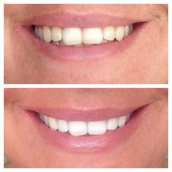 misfarvede tænder